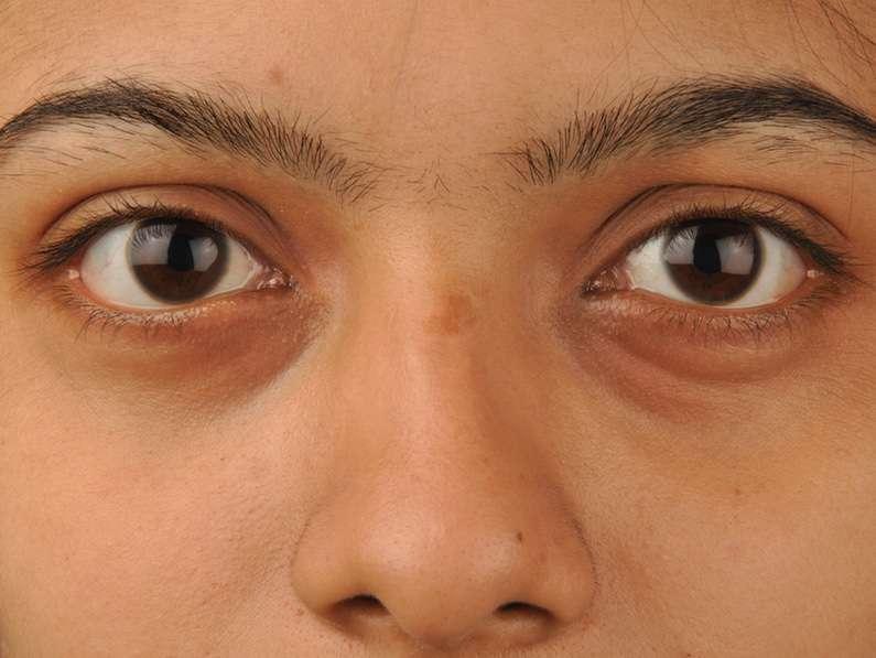 Темные круги под глазами у мужчин: причины появления, способы устранения