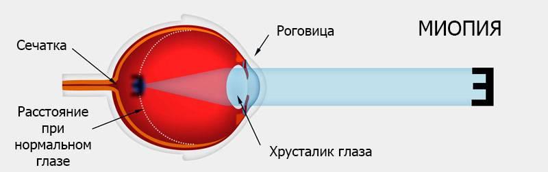 """Миопия (близорукость) 2 степени (средней) - """"здоровое око"""""""