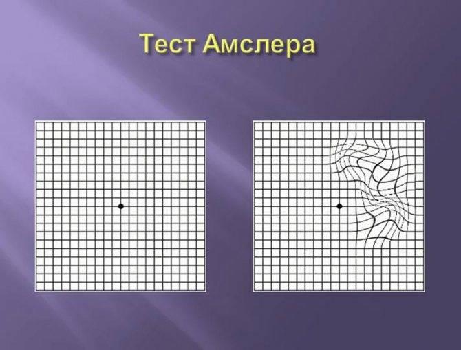 Тест амслера или скотометрия на основе сетки или решетки