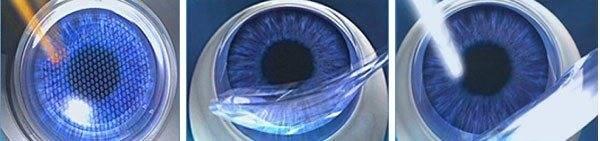 Relex smile лазерная коррекция зрения: особенности метода, отзывы пациентов, возможные осложнения