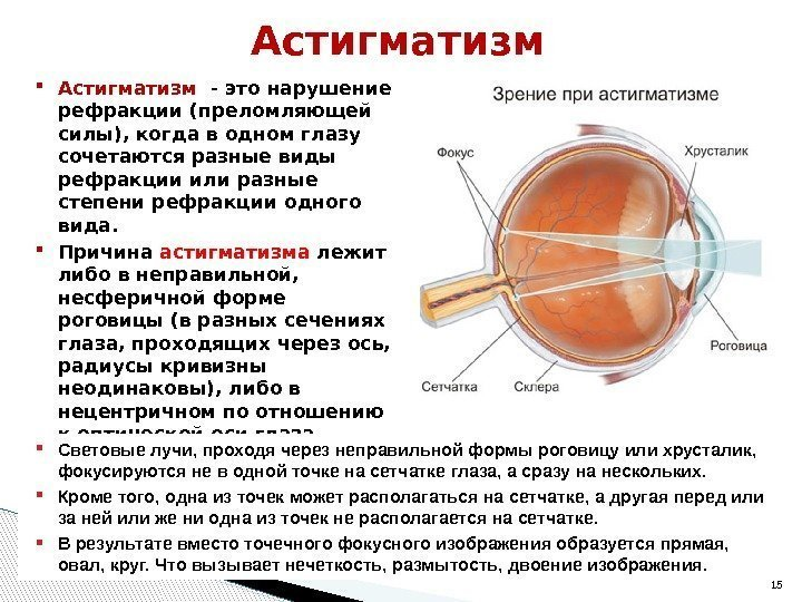 """Рефракция глаза - строение и функции, диагностика и заболевания - сайт """"московская офтальмология"""""""