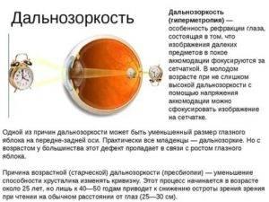 Аметропия глаза у детей и взрослых: что это такое