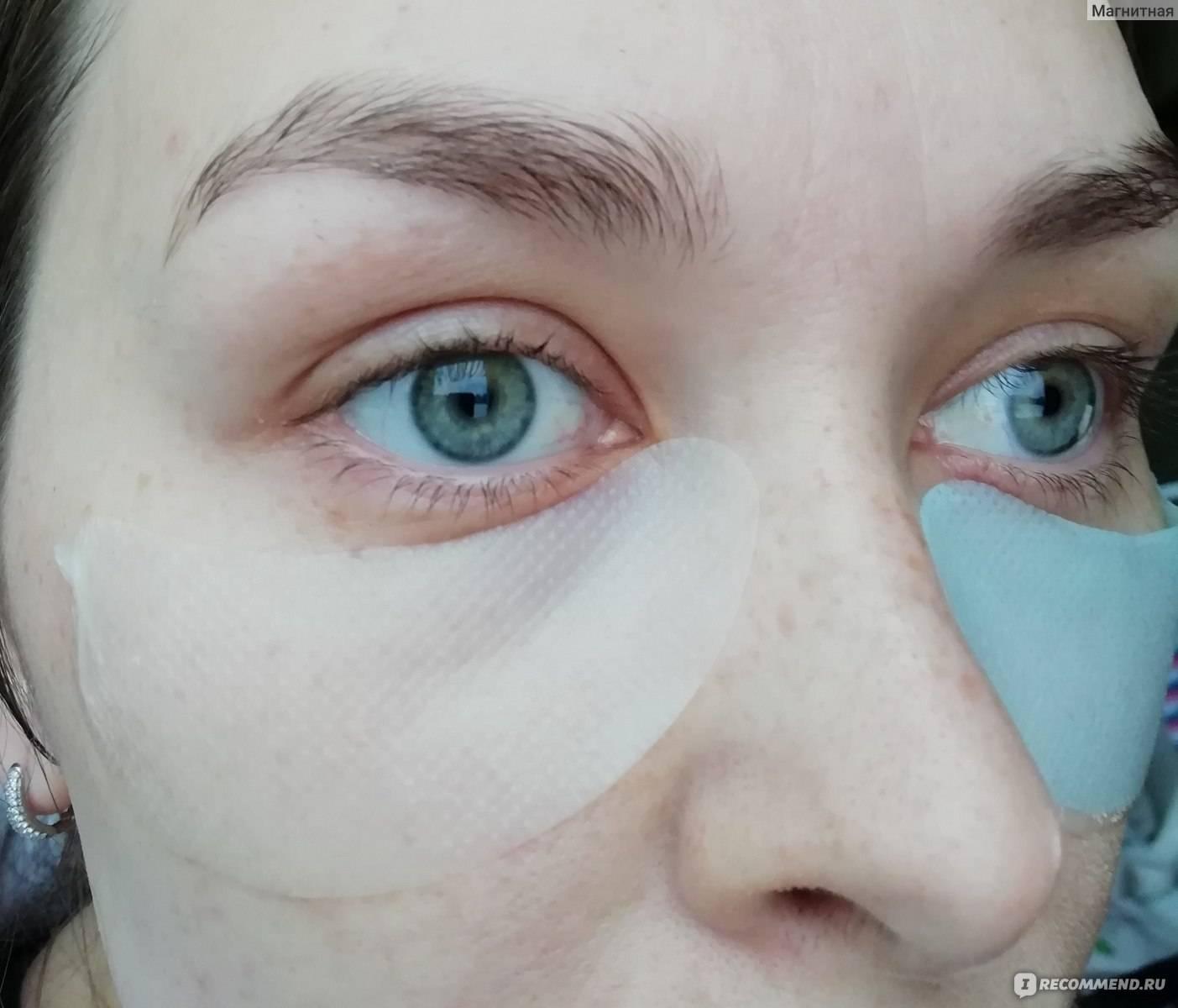 Картошка на глаза, картофельная маска от кругов и синяков: отзывы
