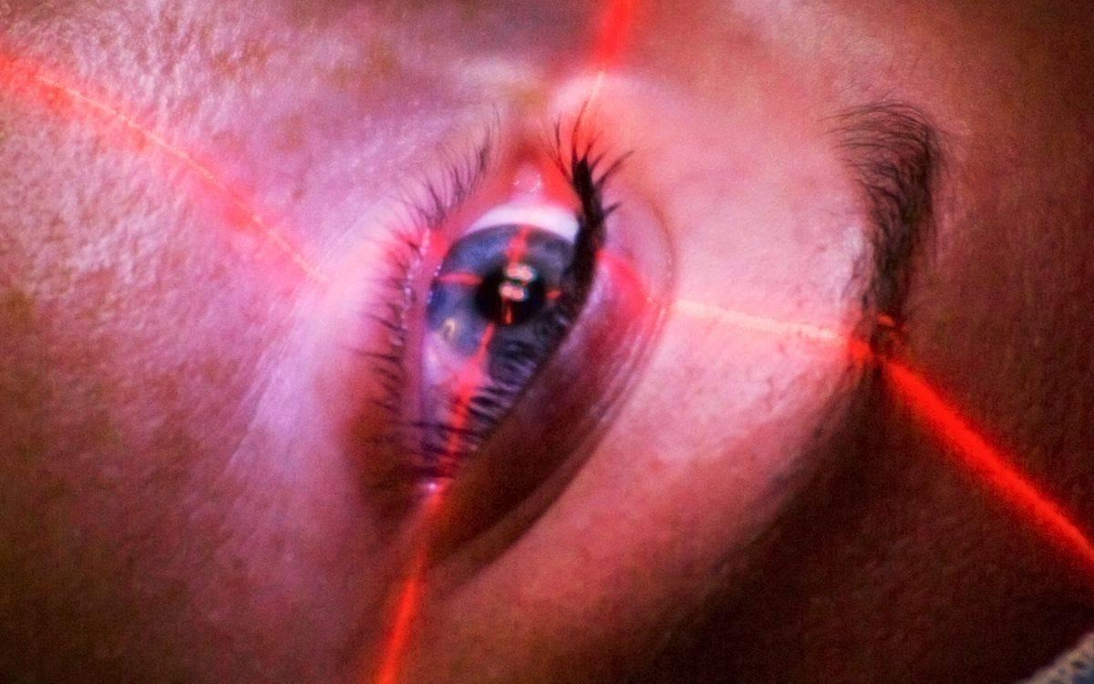 Последствия лазерной коррекции зрения, портал vseozrenii.