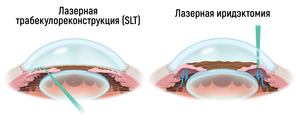 Открытоугольная глаукома – степени, симптомы, лечение. закрытоугольная и открытоугольная глаукома – отличия