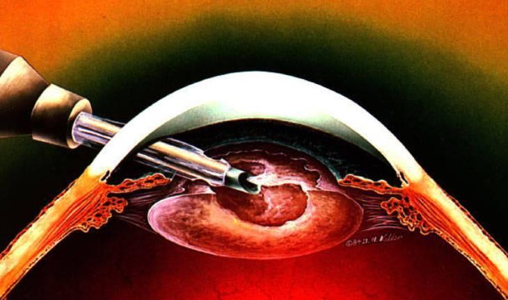 Замена хрусталика глаза при катаракте – послеоперационный период