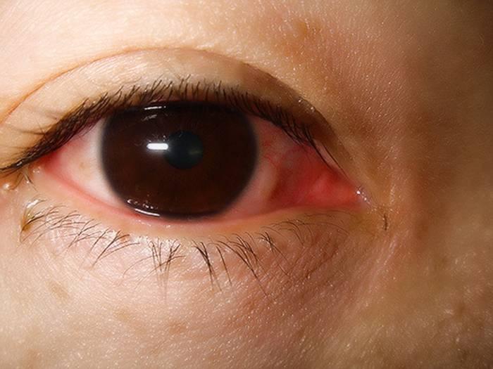 Слезится один глаз - причины и лечение