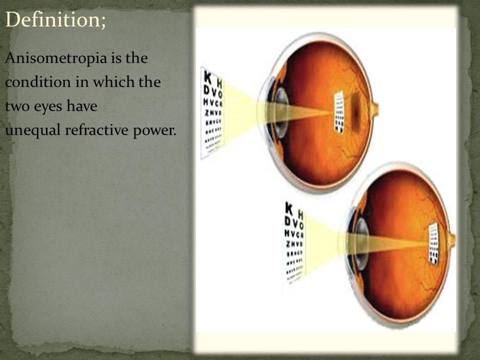 Анизометропия: что это такое, код по мкб-10, связь с миопией