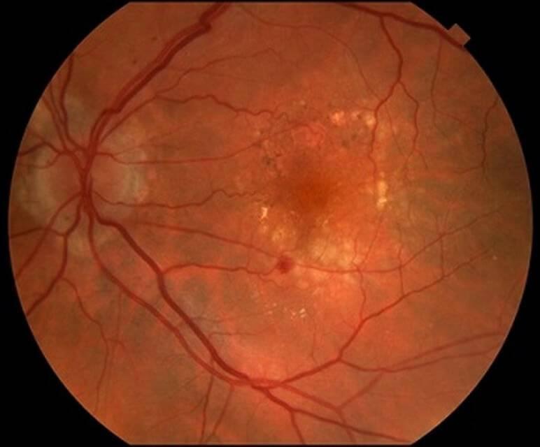 Сужение сосудов глазного дна или сетчатки глаза: причины и симптомы