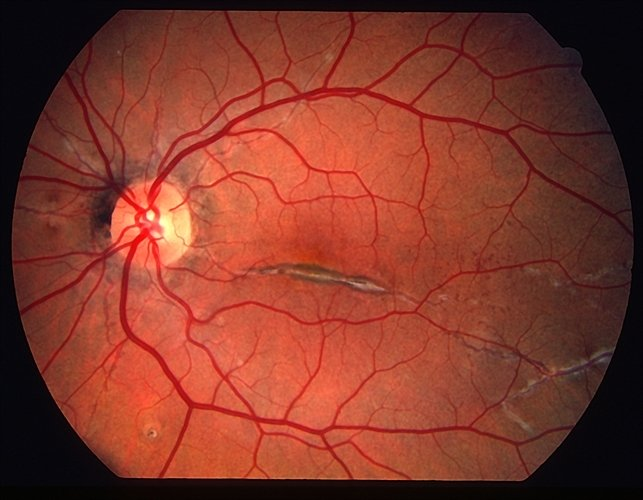Разрыв сетчатки глаза - серьезно ли это, операция, причины и симптомы