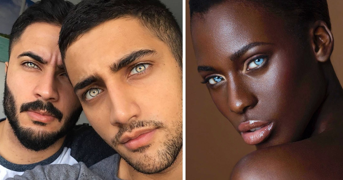 Операция по смене цвета глаз: как проводится, восстановление