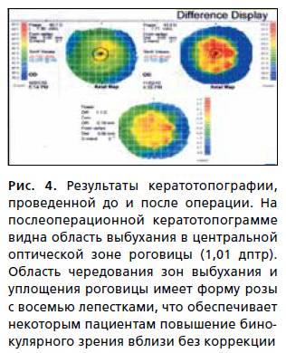 Кератотопография глаза: методика и расшифровка результатов