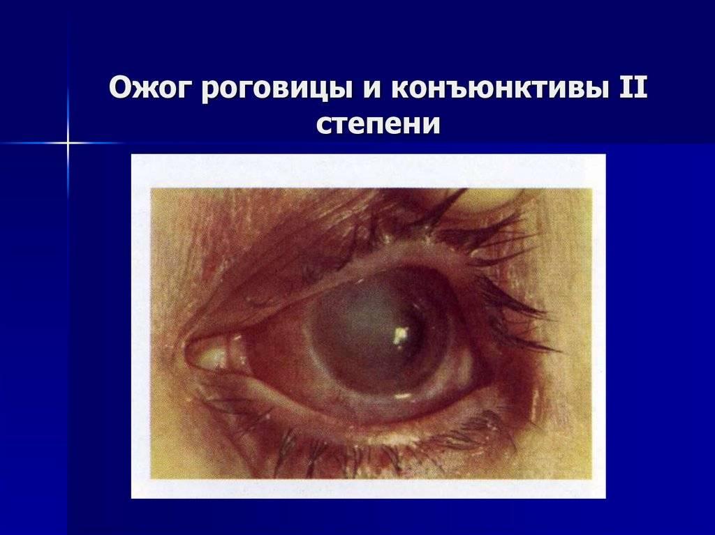 Ожог роговицы глаза: лечение, последствия oculistic.ru ожог роговицы глаза: лечение, последствия