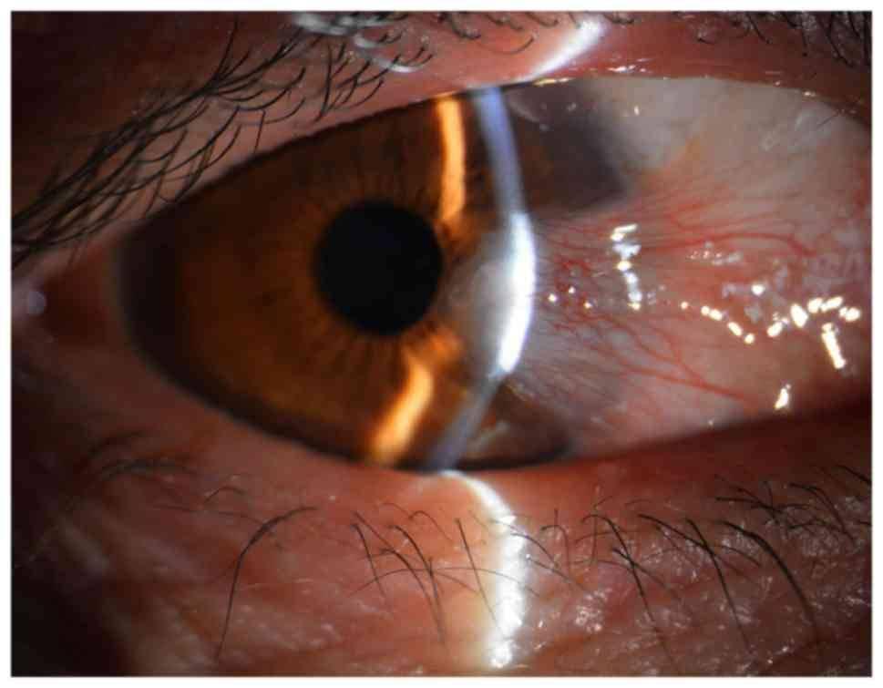 Операция по удалению птеригиума: показания, ход, результат и восстановление