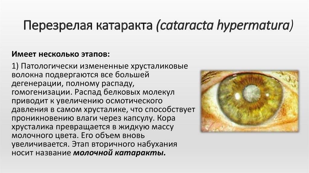 """Лазерное лечение катаракты: как проходит операция - """"здоровое око"""""""