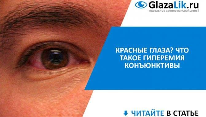 Гиперемия конъюнктивы, причины конъюнктивальной патологии глаз