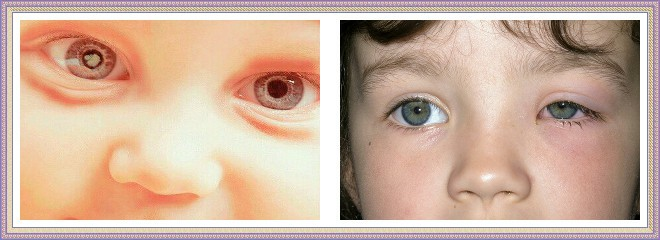 10 причин синяков под глазами у ребенка: варианты нормы и симптомы патологии