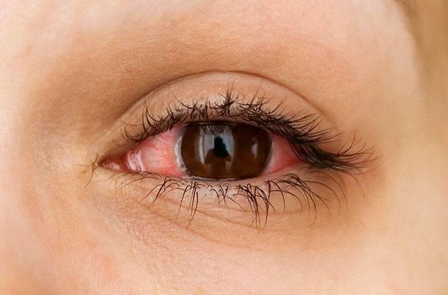 Избавляемся от покраснения глаз дома