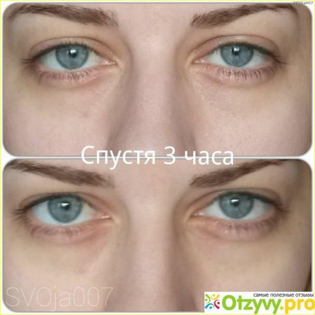 Троксевазин от мешков под глазами: отзывы врачей и пациентов, можно использовать при отеках