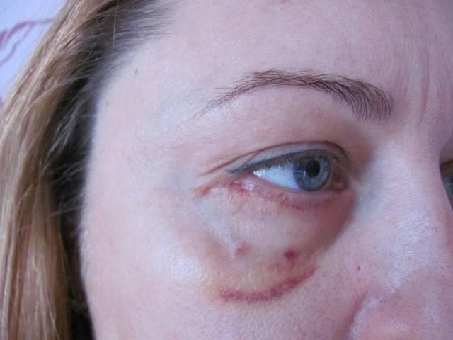 Шрамы после пластических операций: так ли они неизбежны?