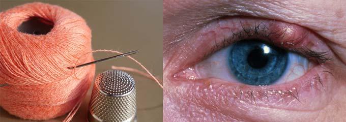 Что делать, если ячмень на глазу долго не проходит oculistic.ru что делать, если ячмень на глазу долго не проходит