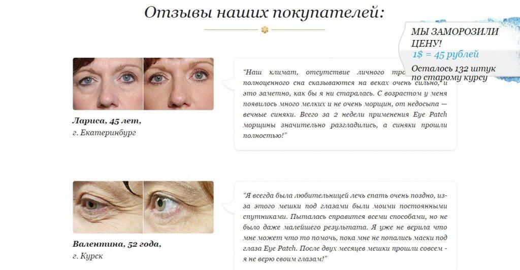 Как быстро привести глаза в порядок после сна и слёз
