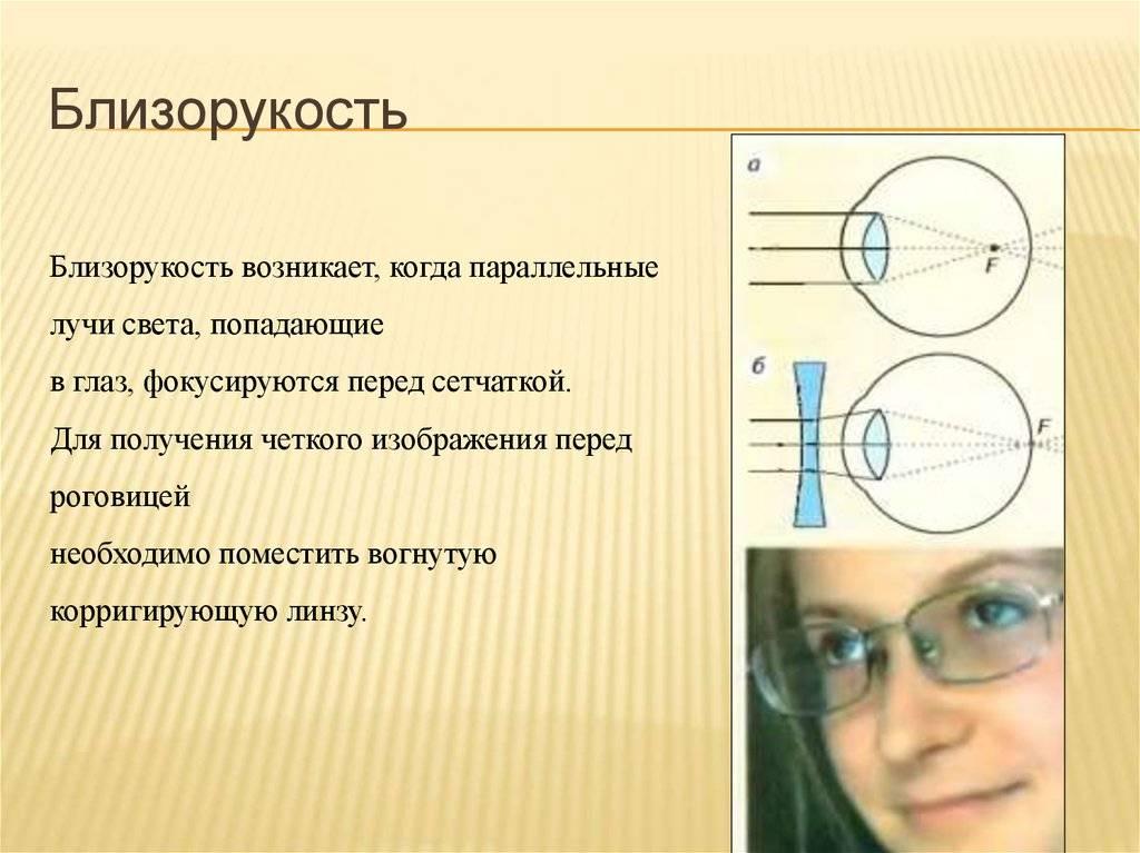Близорукость - это минус или плюс, что это значит в зрении, очки при миопии для дали