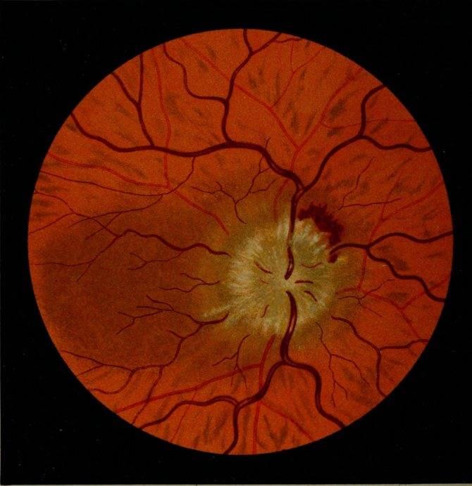Симптомы и лечение отека диска зрительного нерва