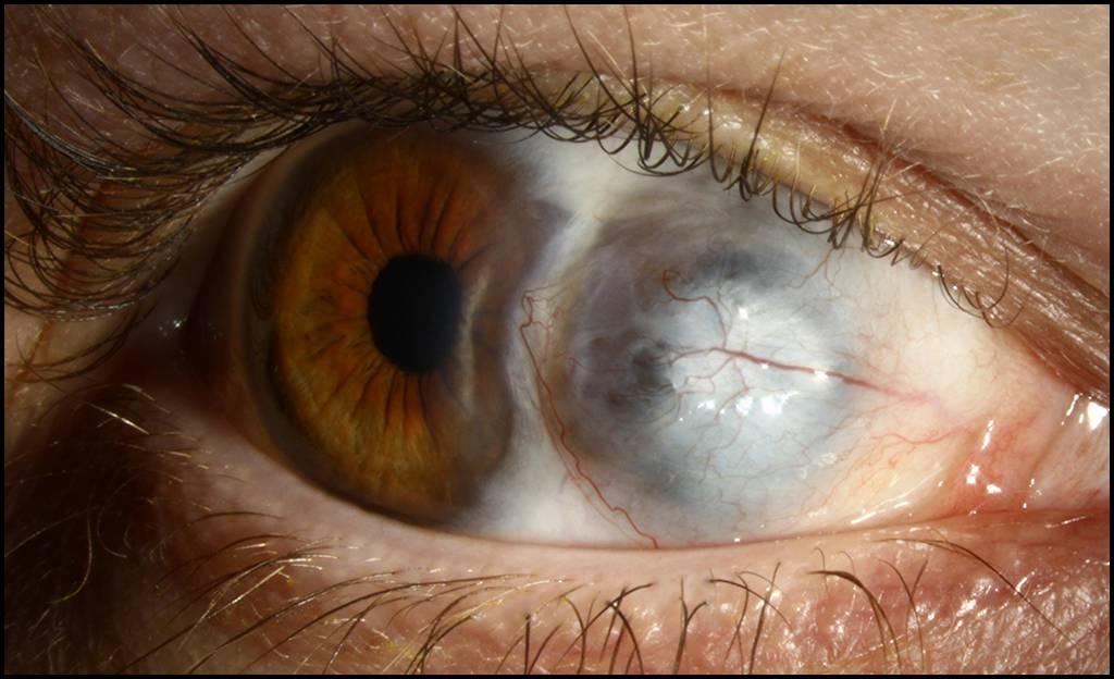 Эписклерит левого и правого глаза: что это такое, простой и узелковый вид, диагностика, лечение, фото при заболевании