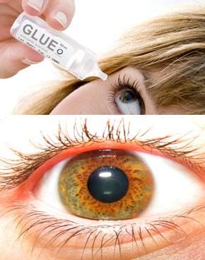 Что делать, если супер клей попал в глаз? первая помощь и возможные последствия
