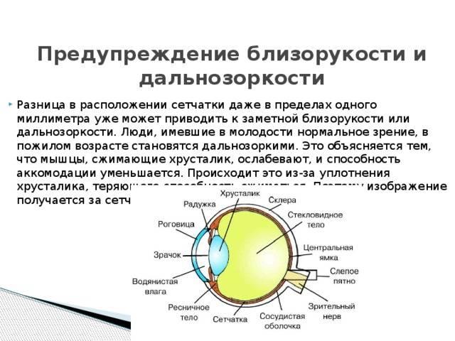Профилактика дальнозоркости (гиперметропии).