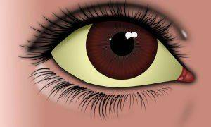 Почему белки глаз желтые