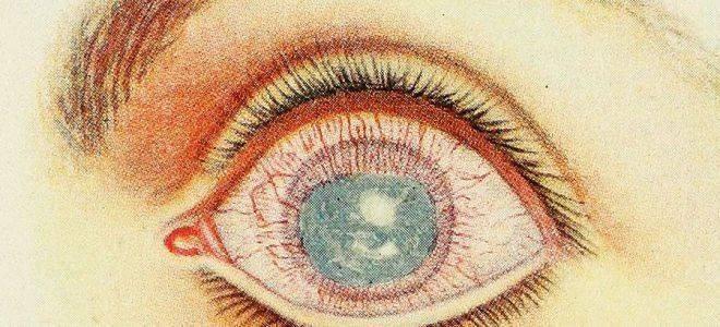Паренхиматозный (сифилитический) кератит
