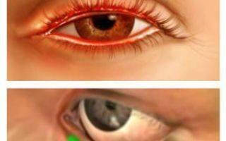 Блефарит: лечение в домашних условиях народными средствами