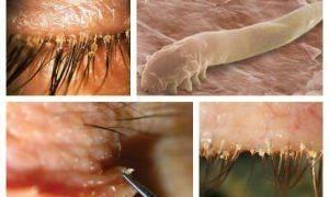 Демодекоз глаз и век: симптомы, причины, лечение