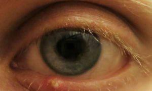 Мази против ячменя на глазу
