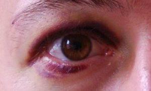 Что такое глазная контузия и как ее лечить