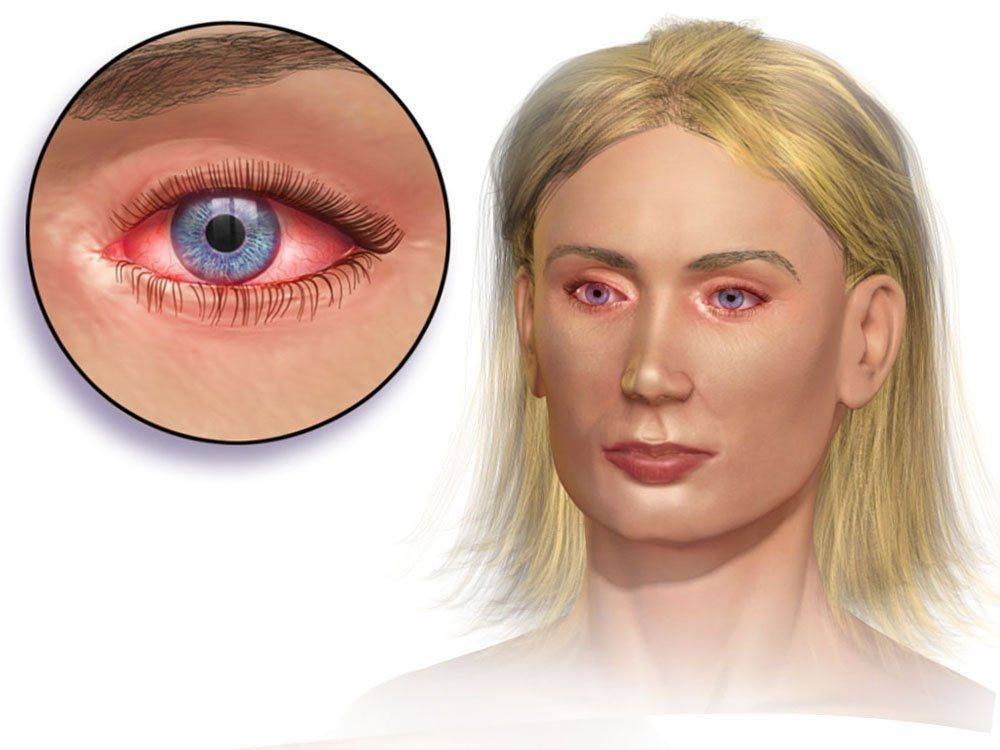 глаз при аллергическом конъюнктивите