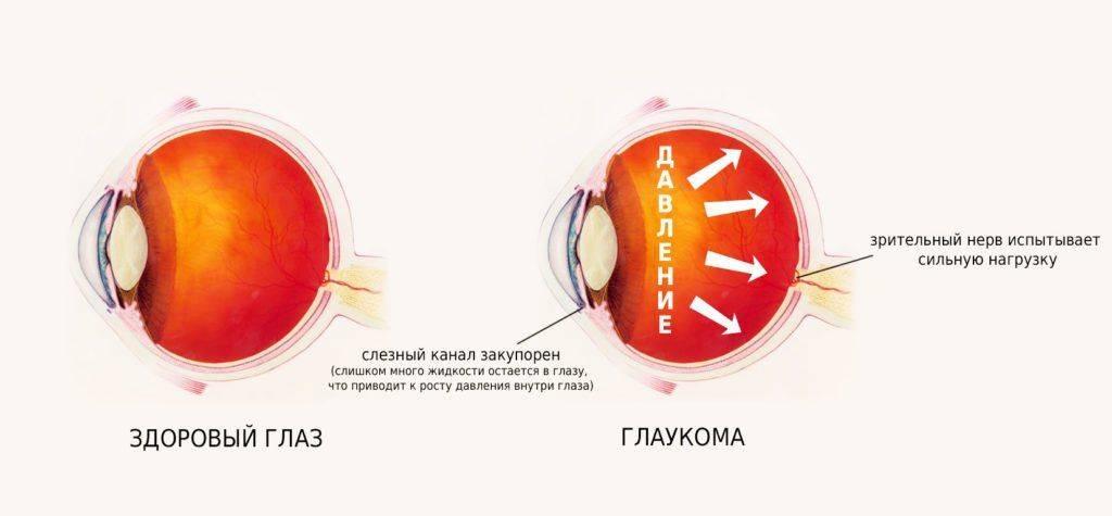 Схема глаза при глаукоме