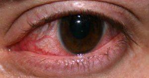 глаз при кератите