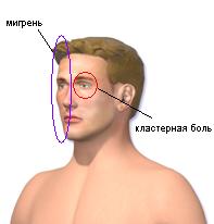 мигрень и кластерная боль