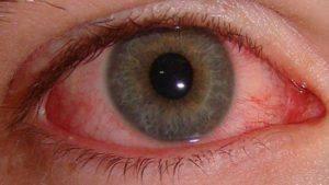 Электроофтальмия: как лечить лечить ожог глаз после воздействия ультрафиолетовых лучей