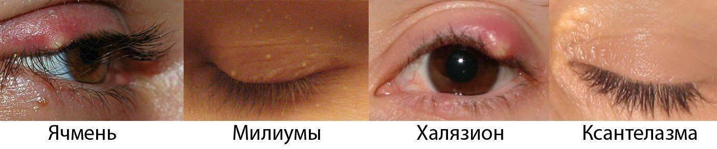 Различия между ячменем, милиумами, халязионом и ксантелазмой