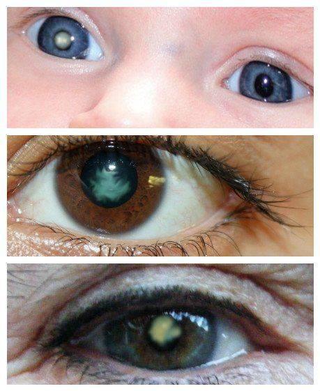 Что такое катаракта в любом возрасте