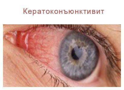 Что такое кератоконъюнктивит