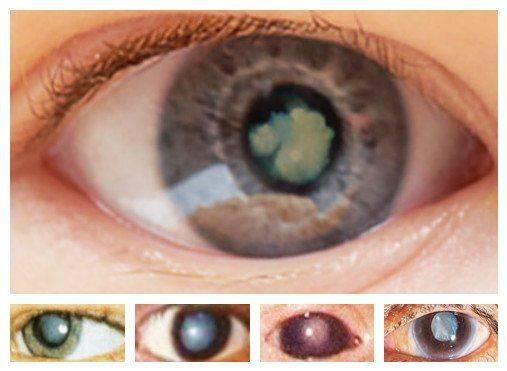 Как выглядит врождённая катаракта