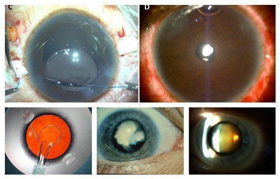 Операция факоэмульсификации катаракты
