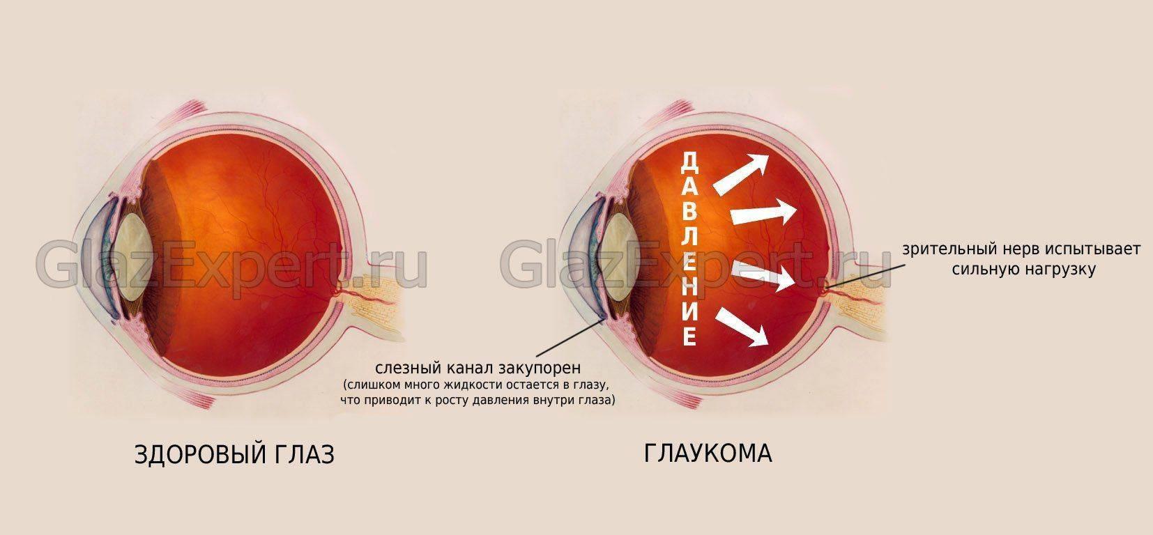 Процесс развития глаукомы