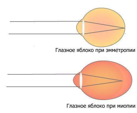 Деформация глазного яблока - миопия