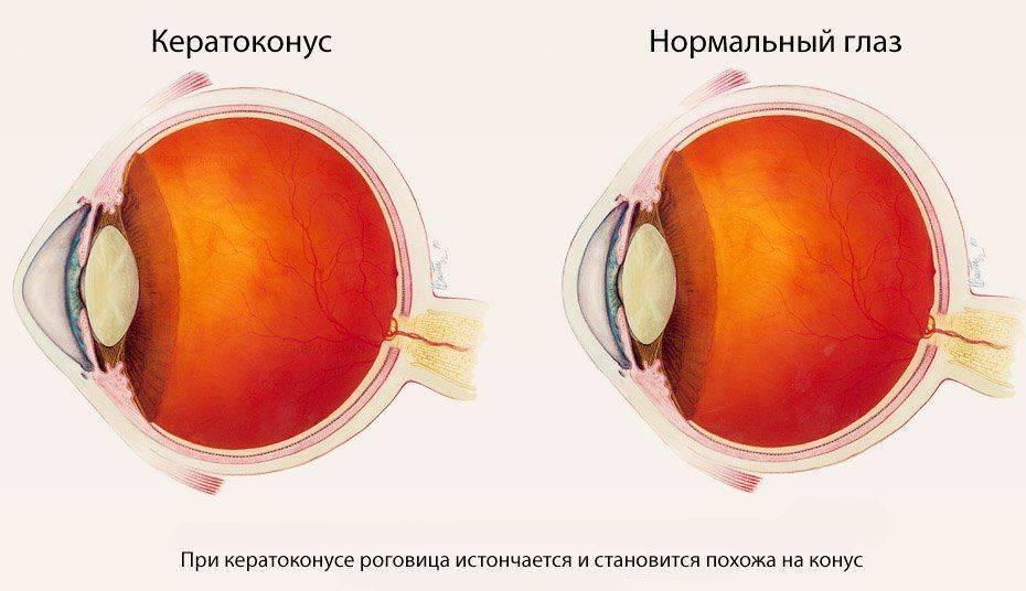 Как изменяется роговица при кератоконусе